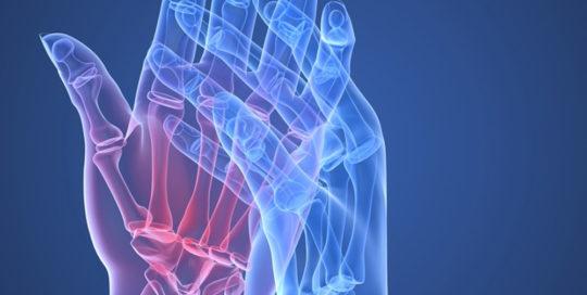 Cure artrite reumatoide | Atlantic terme natural Spa & Hotel