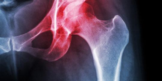 Cure artrosi anca | Atlantic terme natural Spa & Hotel