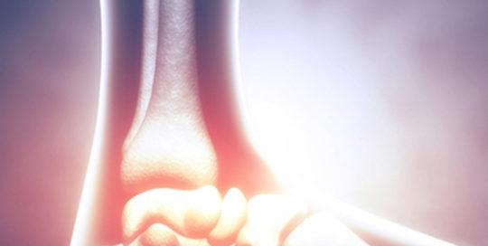 Cure artrosi ginocchio | Atlantic terme natural Spa & Hotel
